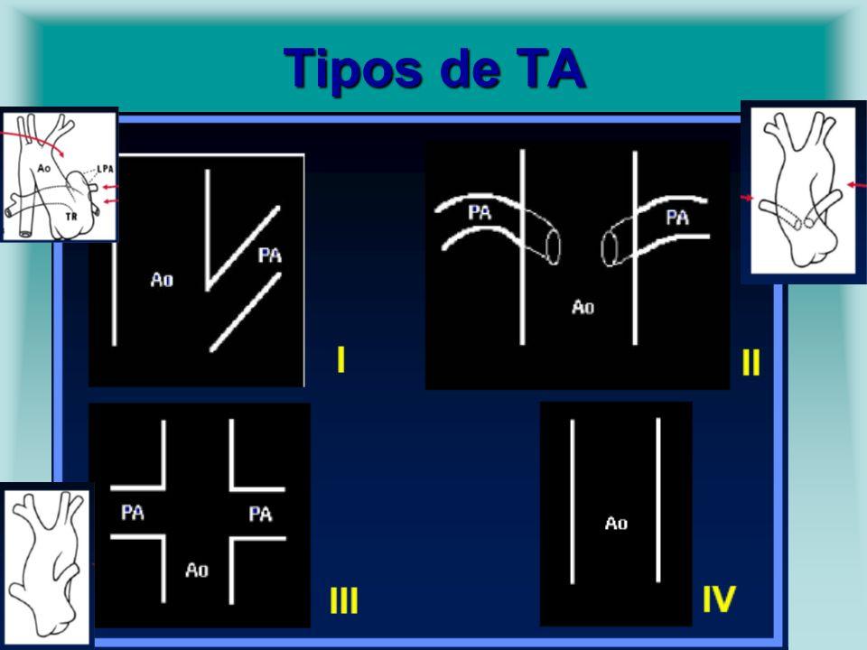 Tipos de TA
