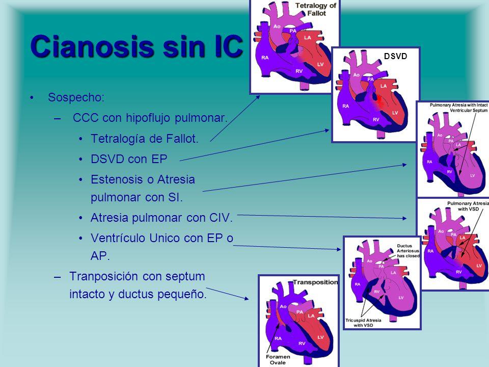 Cianosis sin IC Sospecho: CCC con hipoflujo pulmonar.
