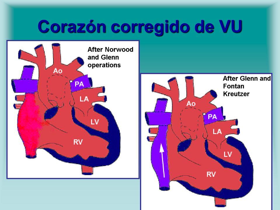 Corazón corregido de VU