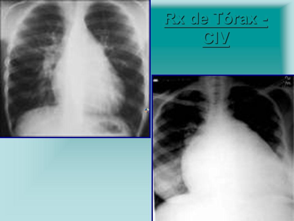 Rx de Tórax - CIV Cardiomagalia.