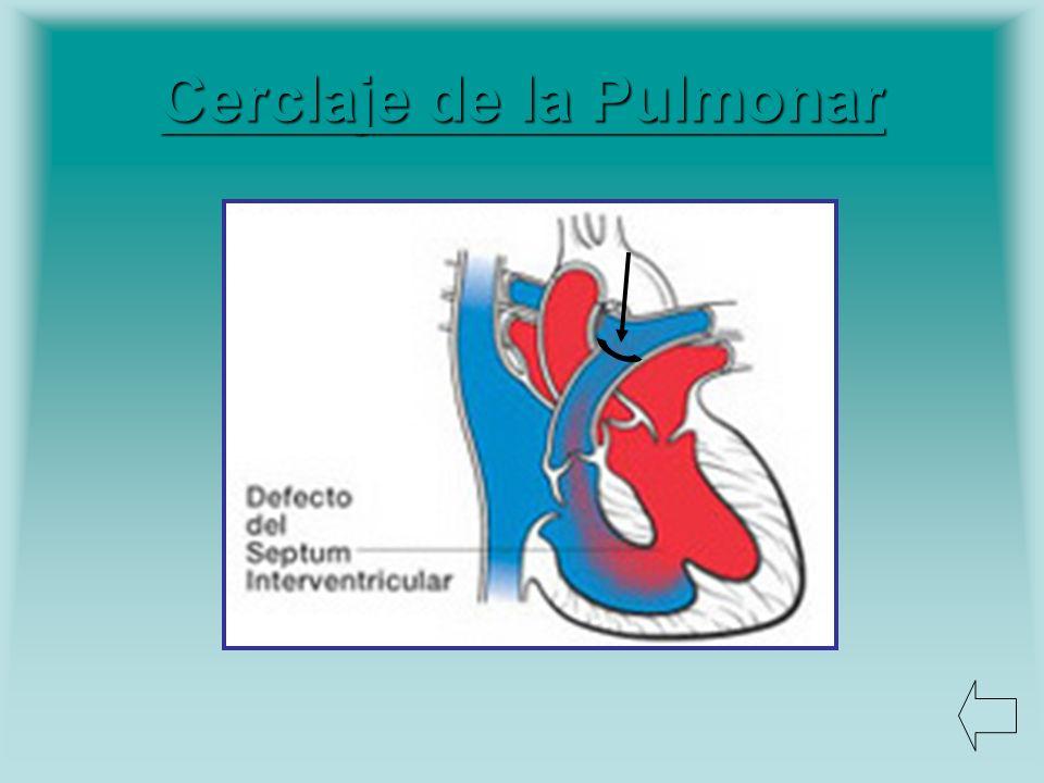 Cerclaje de la Pulmonar
