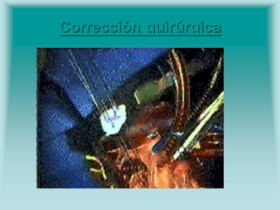 Corrección quirúrgica