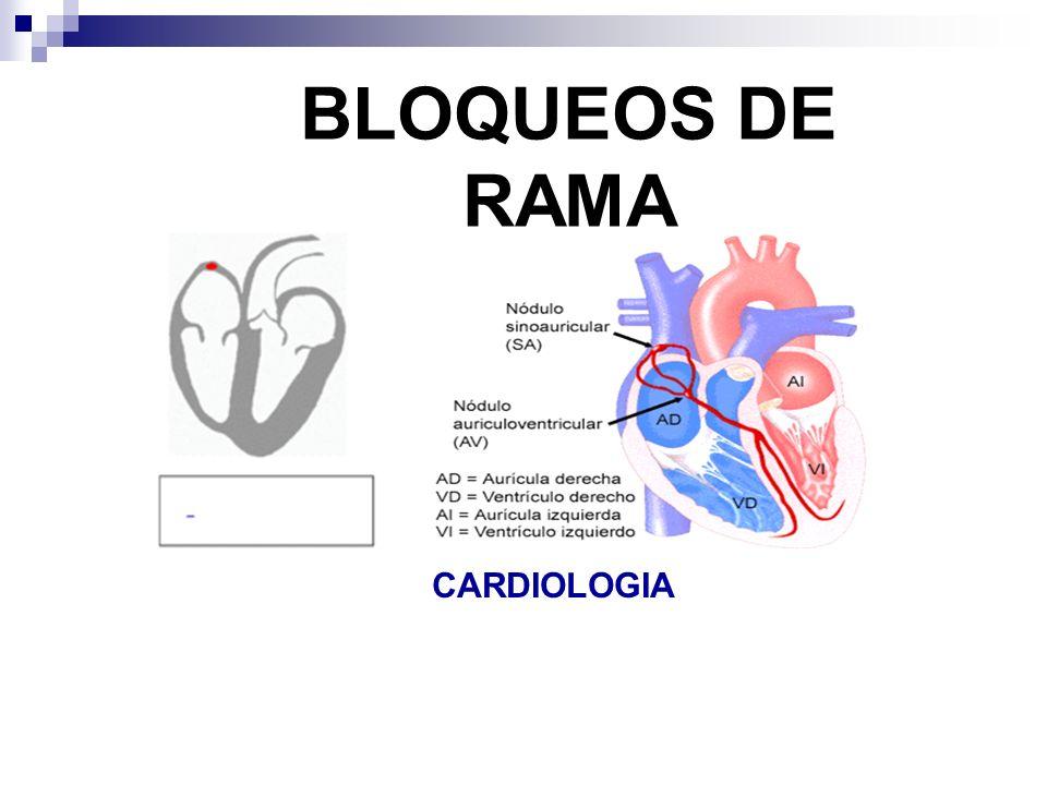 BLOQUEOS DE RAMA CARDIOLOGIA