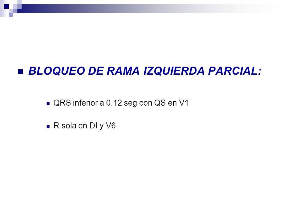 BLOQUEO DE RAMA IZQUIERDA PARCIAL: