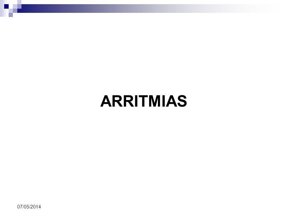 ARRITMIAS 29/03/2017