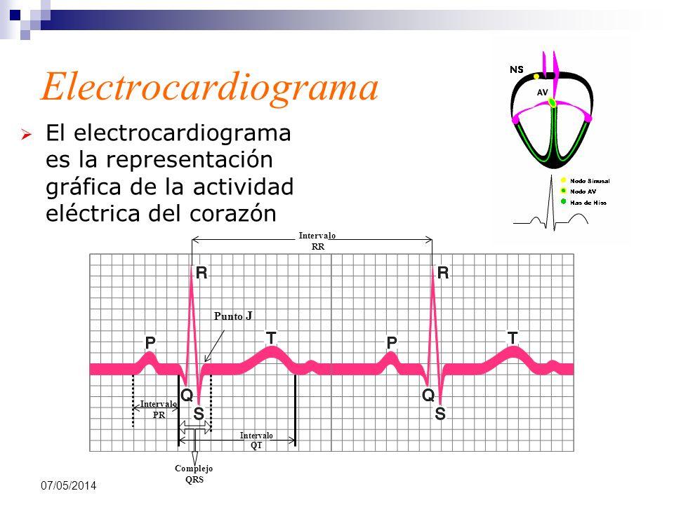 Electrocardiograma El electrocardiograma es la representación gráfica de la actividad eléctrica del corazón.