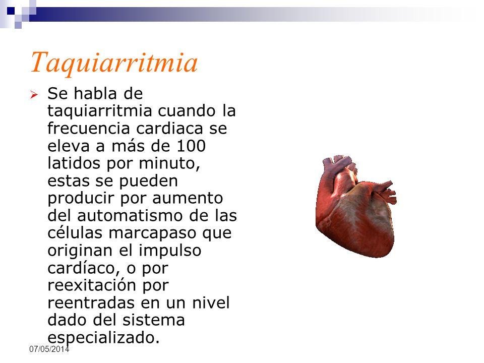 Taquiarritmia