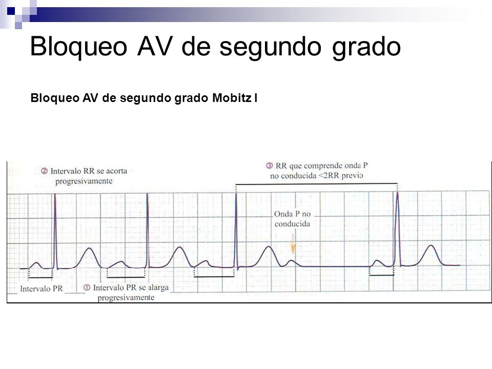 BLOQUEOS DE RAMA CARDIOLOGIA. - ppt video online descargar