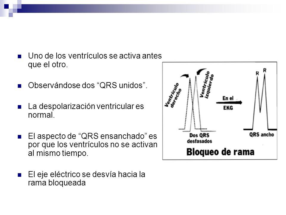 Uno de los ventrículos se activa antes que el otro.