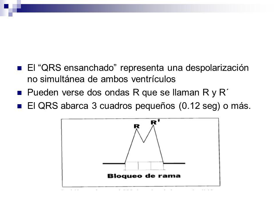 El QRS ensanchado representa una despolarización no simultánea de ambos ventrículos