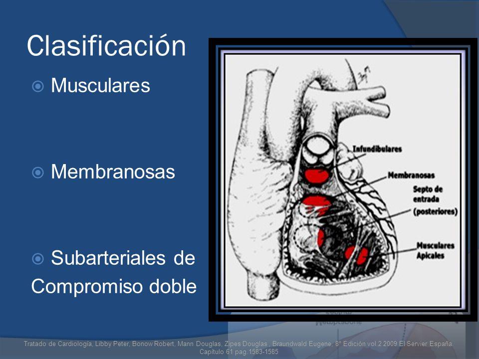 Clasificación Musculares Membranosas Subarteriales de Compromiso doble