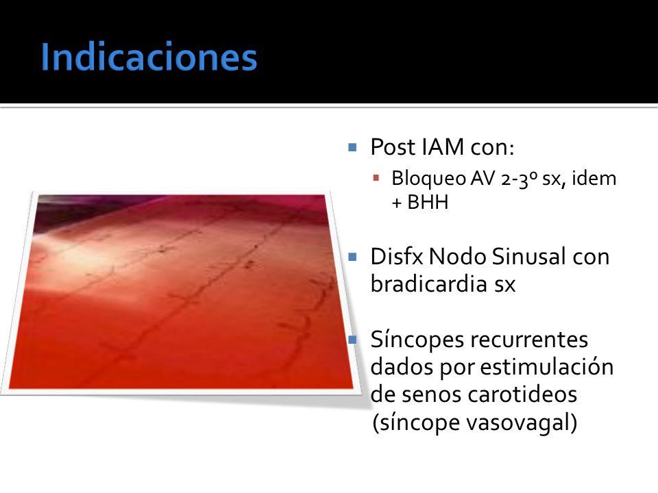 Indicaciones Post IAM con: Disfx Nodo Sinusal con bradicardia sx
