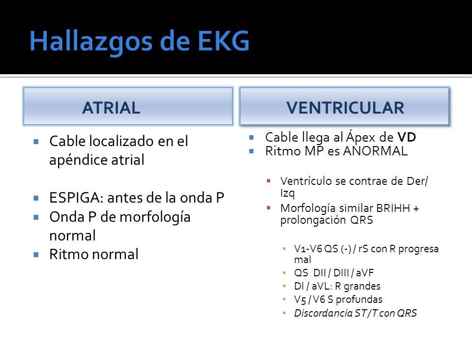Hallazgos de EKG ATRIAL VENTRICULAR