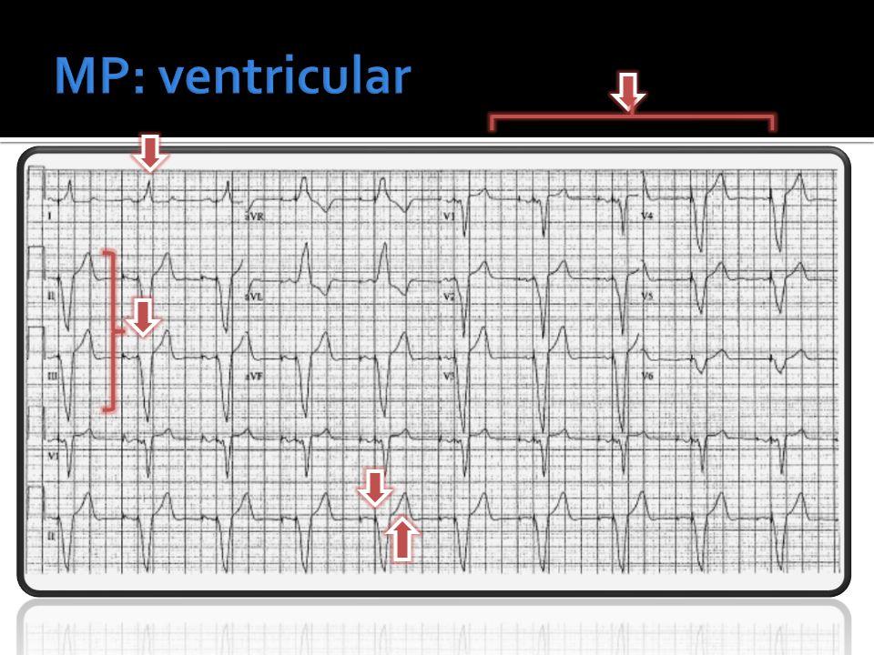 MP: ventricular