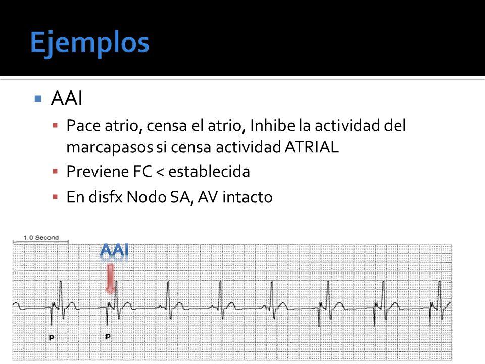 Ejemplos AAI. Pace atrio, censa el atrio, Inhibe la actividad del marcapasos si censa actividad ATRIAL.