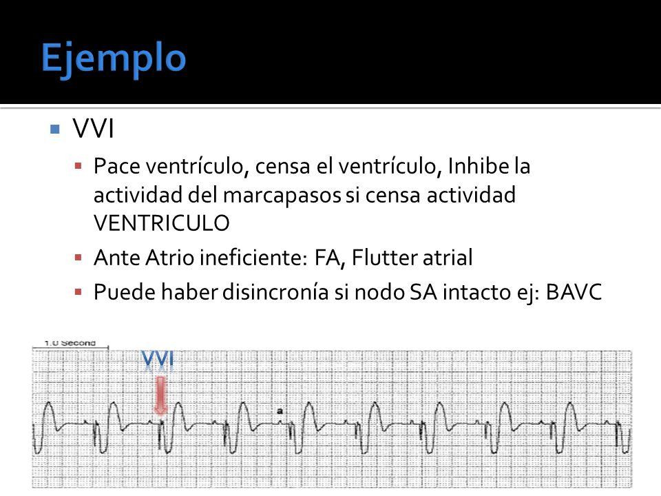 Ejemplo VVI. Pace ventrículo, censa el ventrículo, Inhibe la actividad del marcapasos si censa actividad VENTRICULO.