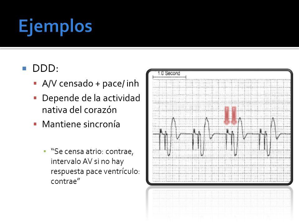 Ejemplos DDD: A/V censado + pace/ inh