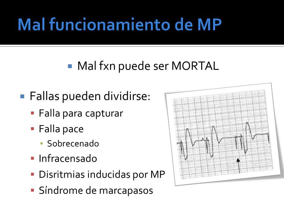 Mal funcionamiento de MP