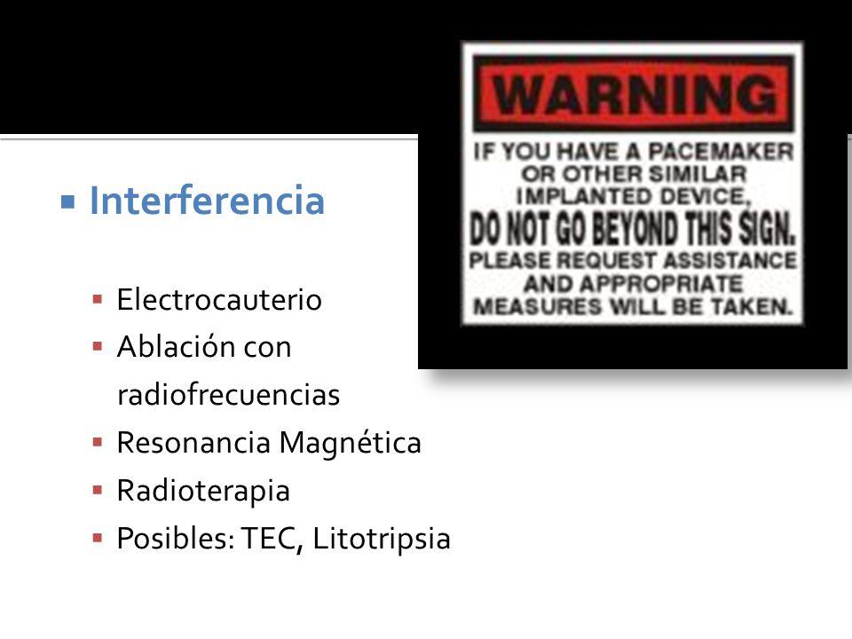 Interferencia Electrocauterio Ablación con radiofrecuencias