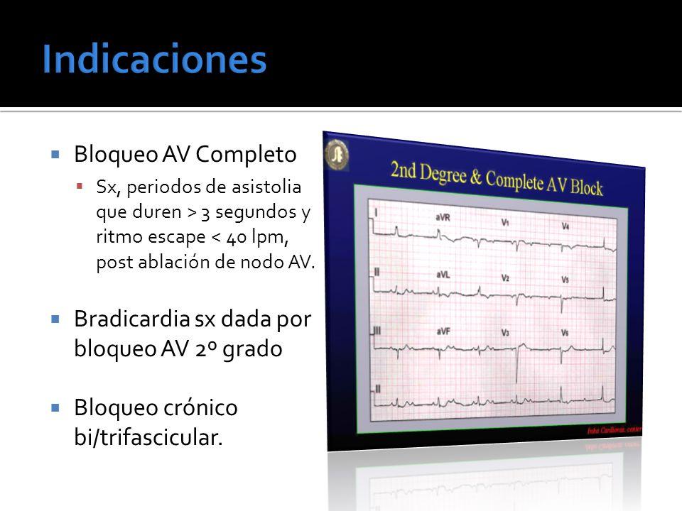 Indicaciones Bloqueo AV Completo