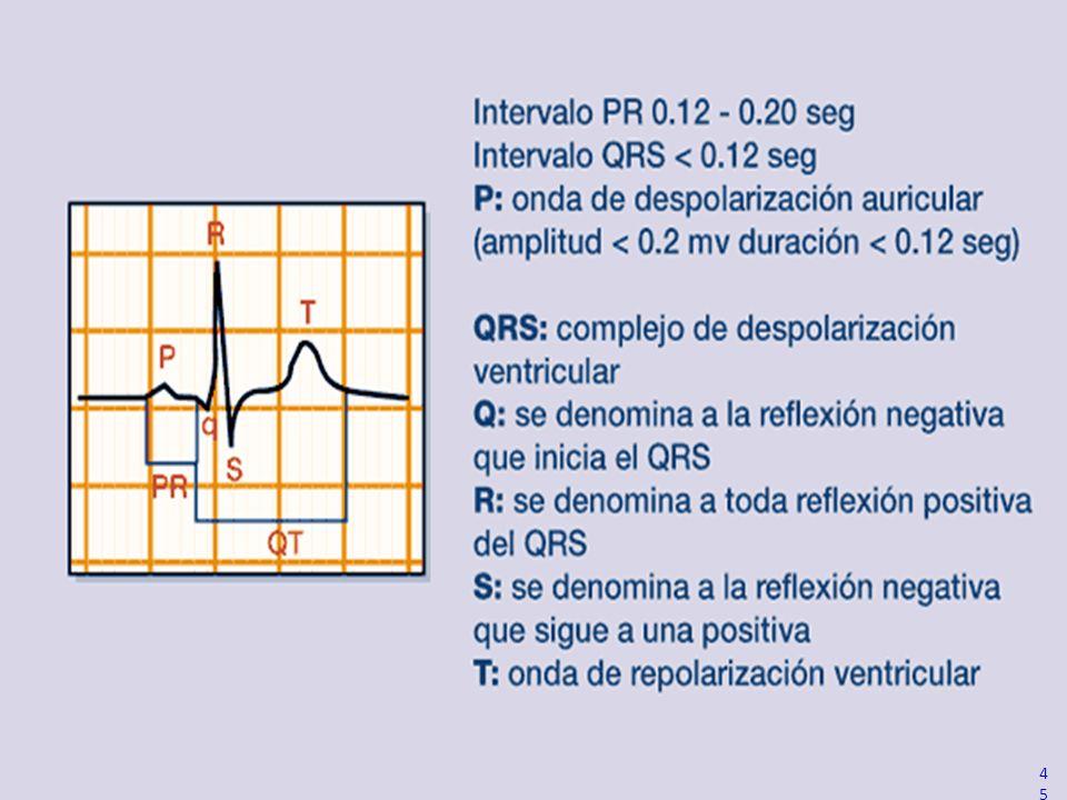 QRS waveform nomenclature