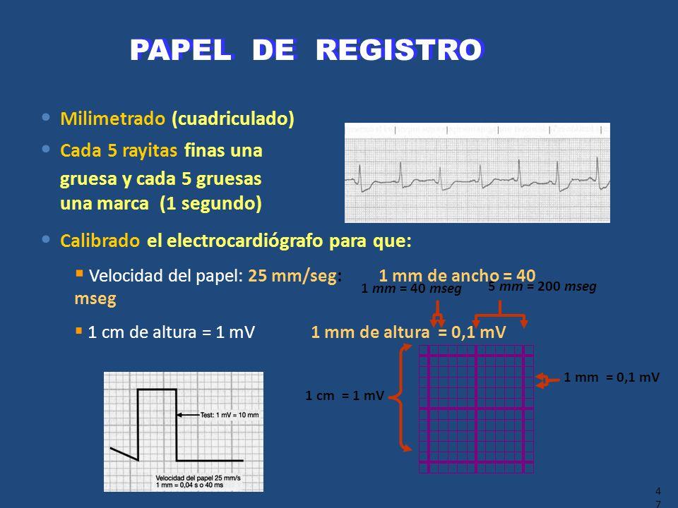 PAPEL DE REGISTRO Milimetrado (cuadriculado) Cada 5 rayitas finas una