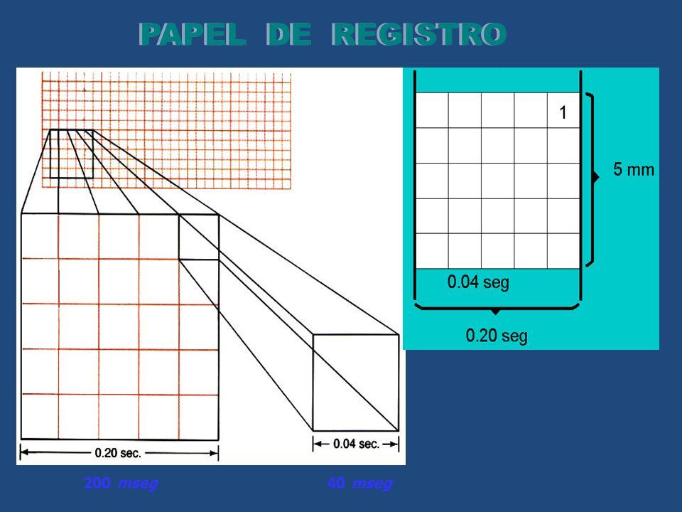 PAPEL DE REGISTRO 200 mseg 40 mseg