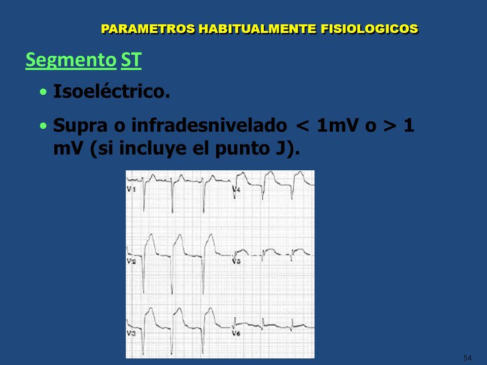 Segmento ST Isoeléctrico.