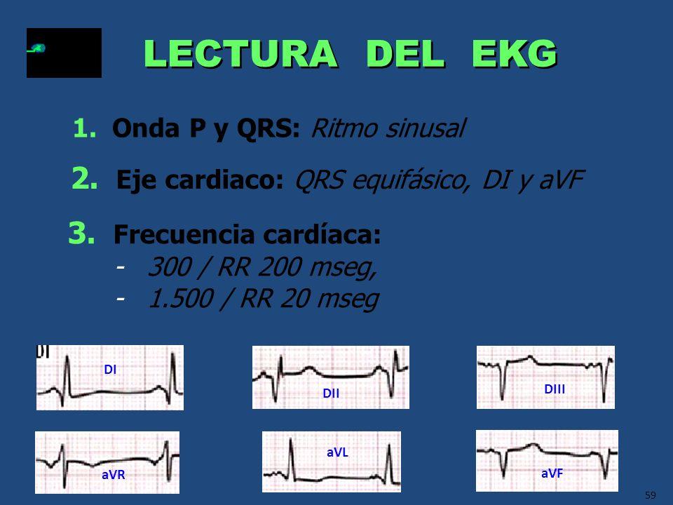 LECTURA DEL EKG 2. Eje cardiaco: QRS equifásico, DI y aVF