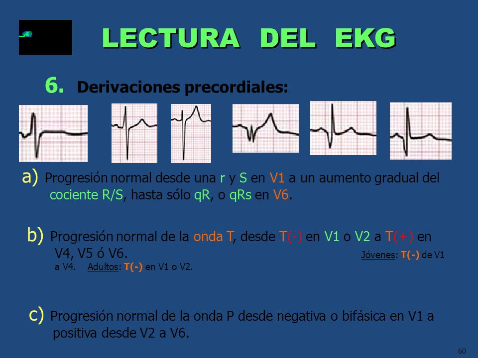 LECTURA DEL EKG 6. Derivaciones precordiales: