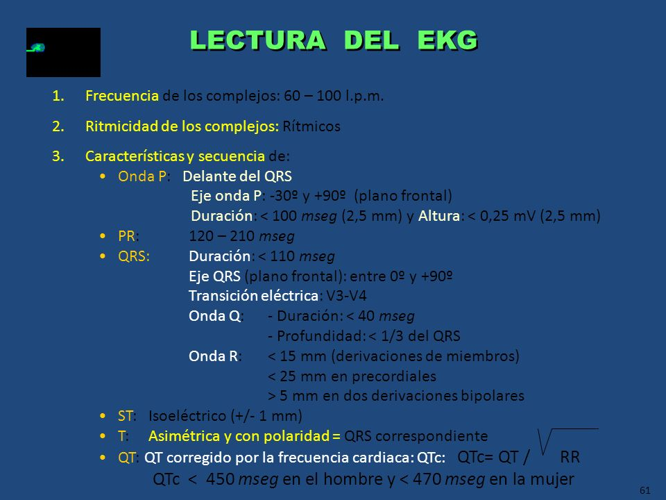 LECTURA DEL EKG Frecuencia de los complejos: 60 – 100 l.p.m. Ritmicidad de los complejos: Rítmicos.