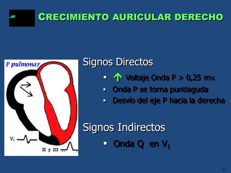 Signos Indirectos Onda Q en V1 Signos Directos
