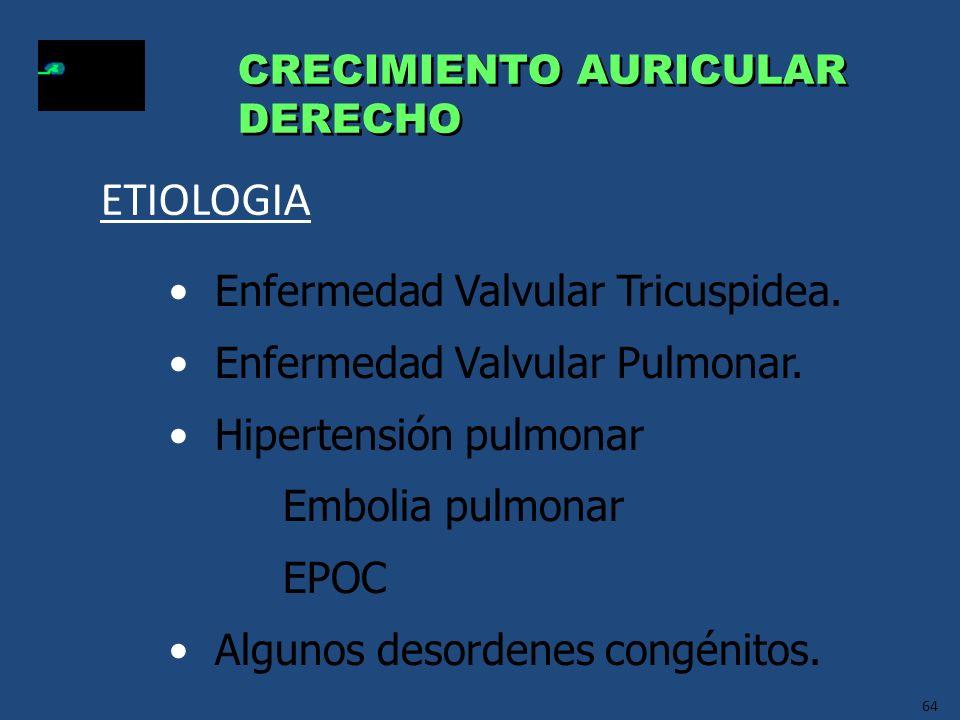 ETIOLOGIA Enfermedad Valvular Tricuspidea.