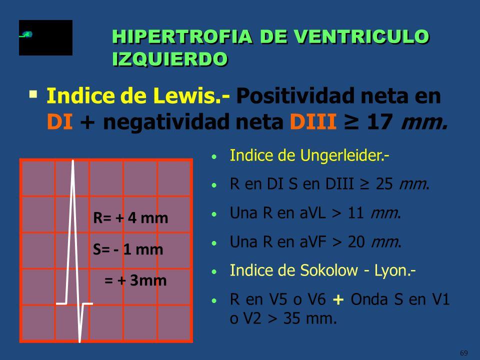 HIPERTROFIA DE VENTRICULO IZQUIERDO