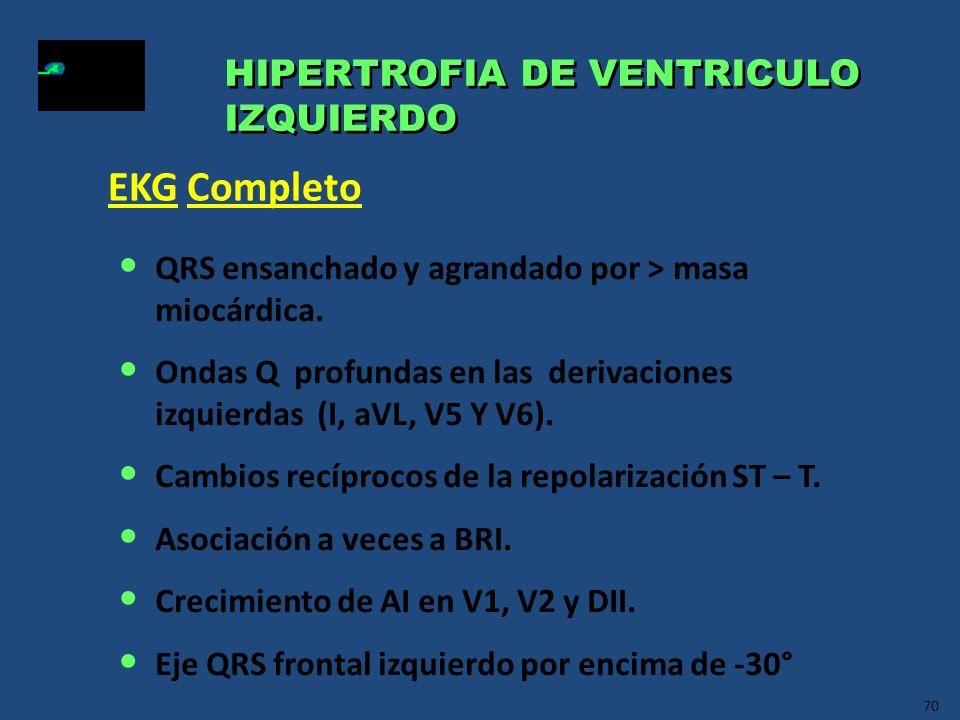 EKG Completo HIPERTROFIA DE VENTRICULO IZQUIERDO
