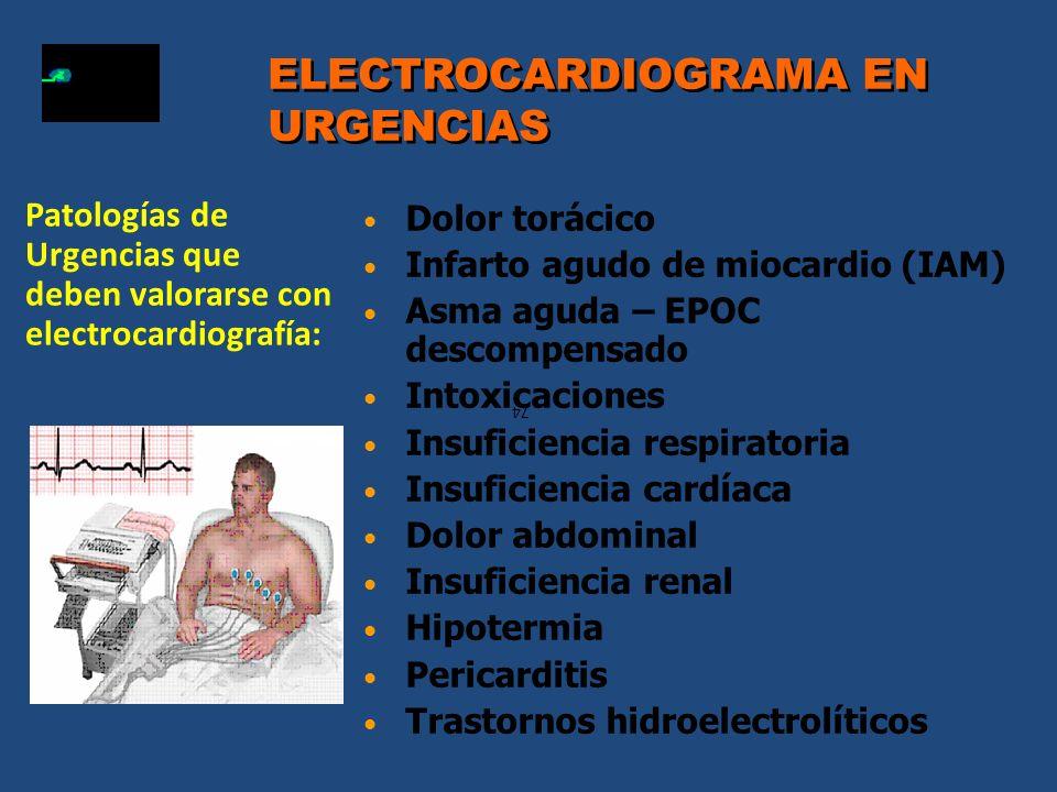ELECTROCARDIOGRAMA EN URGENCIAS
