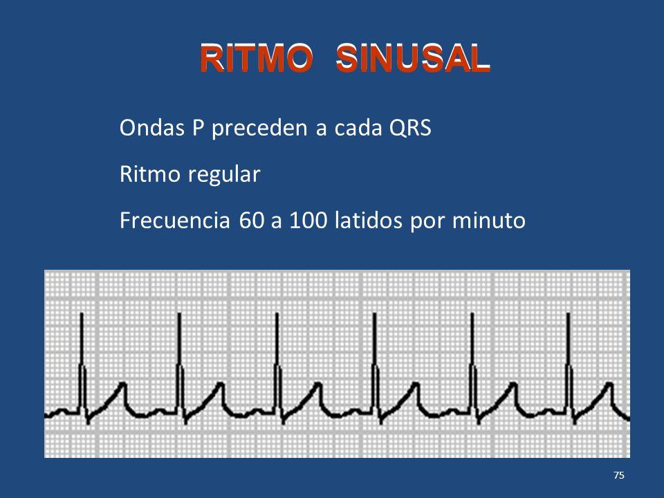 RITMO SINUSAL Ondas P preceden a cada QRS Ritmo regular