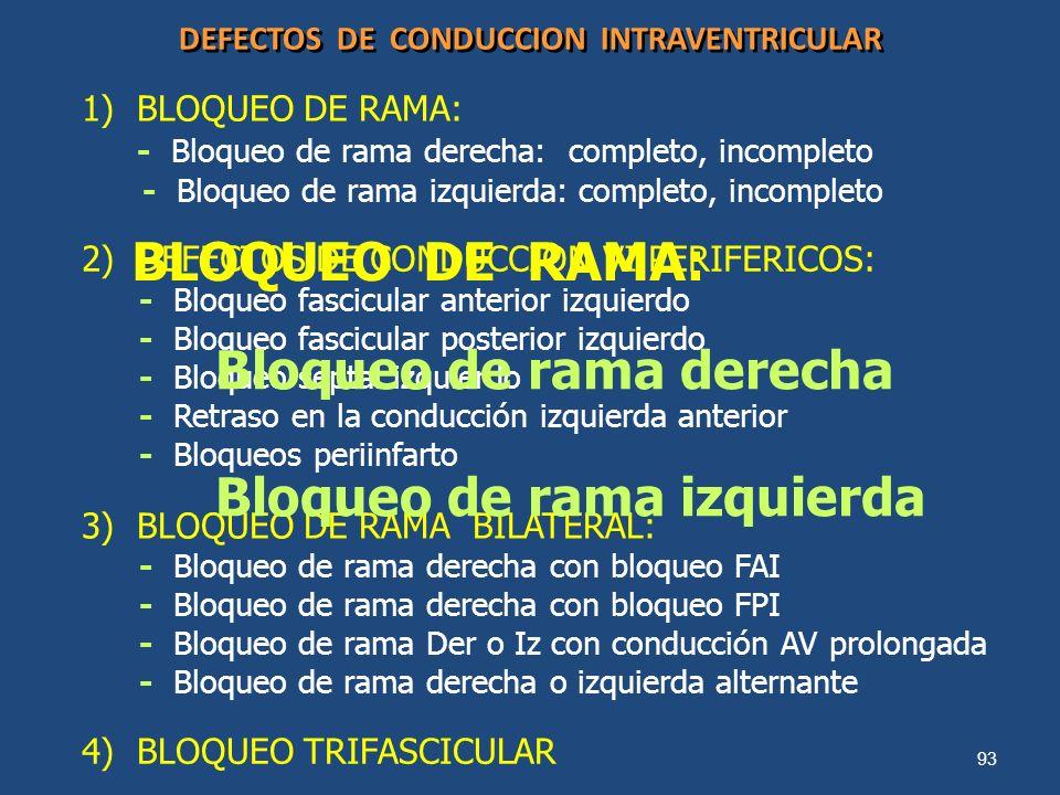 DEFECTOS DE CONDUCCION INTRAVENTRICULAR