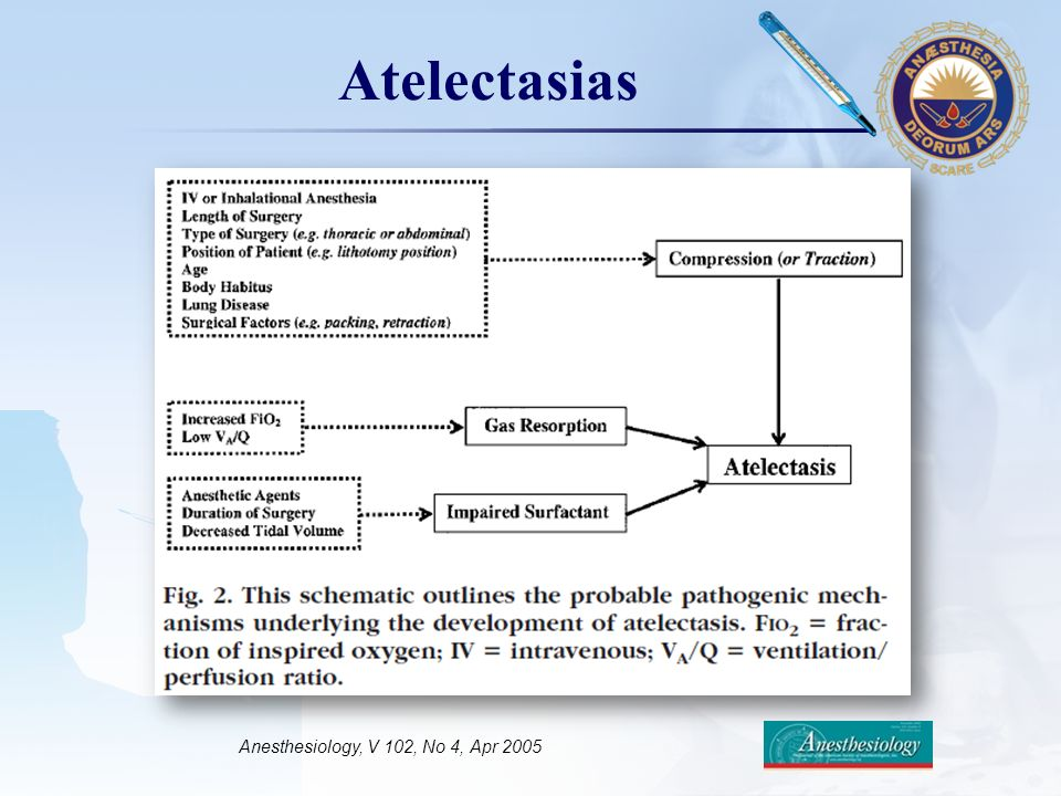 Anesthesiology, V 102, No 4, Apr 2005