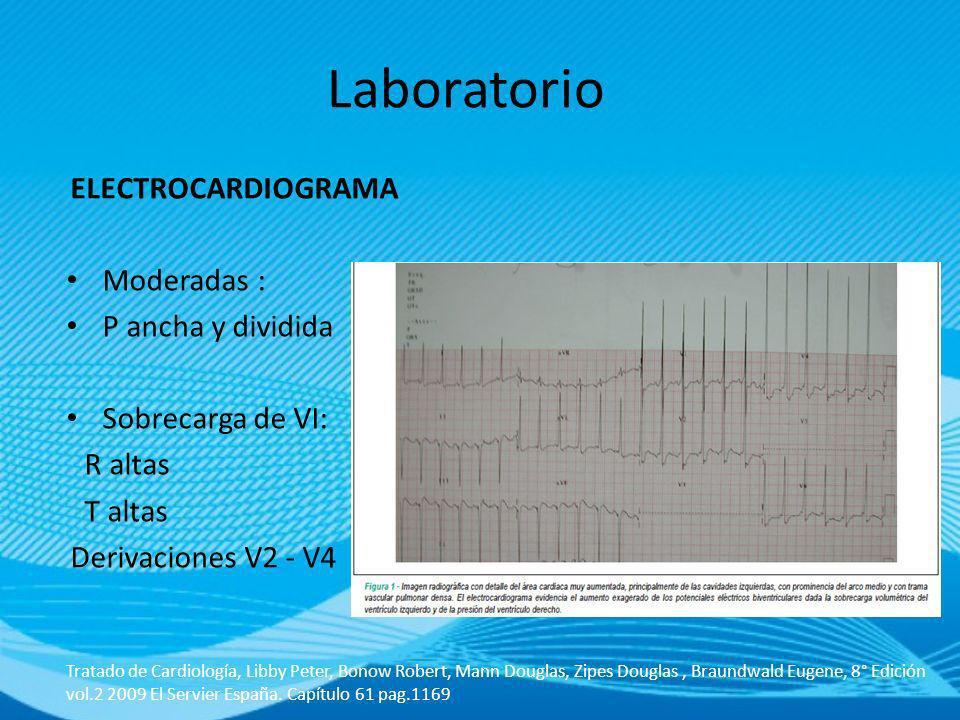 Laboratorio ELECTROCARDIOGRAMA Moderadas : P ancha y dividida