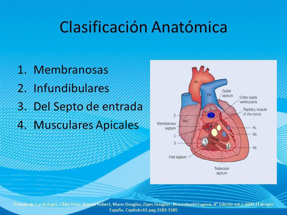 Clasificación Anatómica