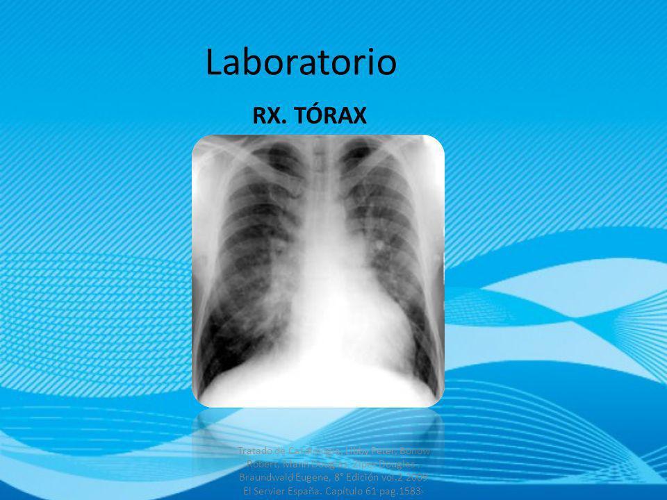 Laboratorio RX. TÓRAX.