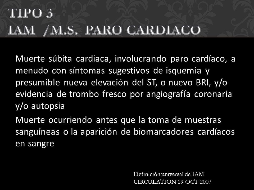 TIPO 3 IAM /M.S. PARO CARDIACO