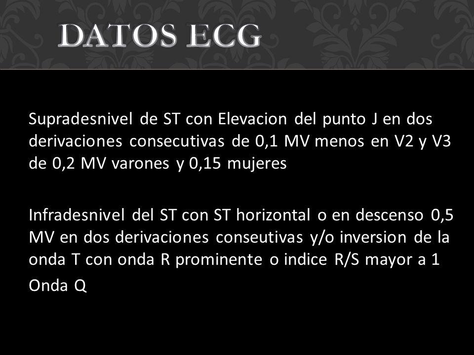 DATOS ECG