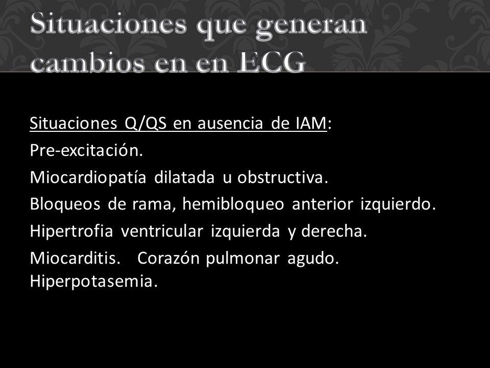 Situaciones que generan cambios en en ECG