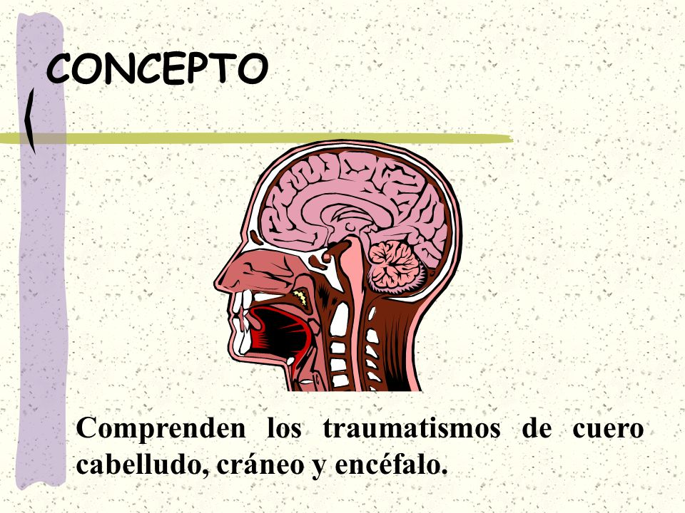 CONCEPTO Comprenden los traumatismos de cuero cabelludo, cráneo y encéfalo.