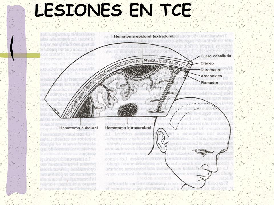 LESIONES EN TCE