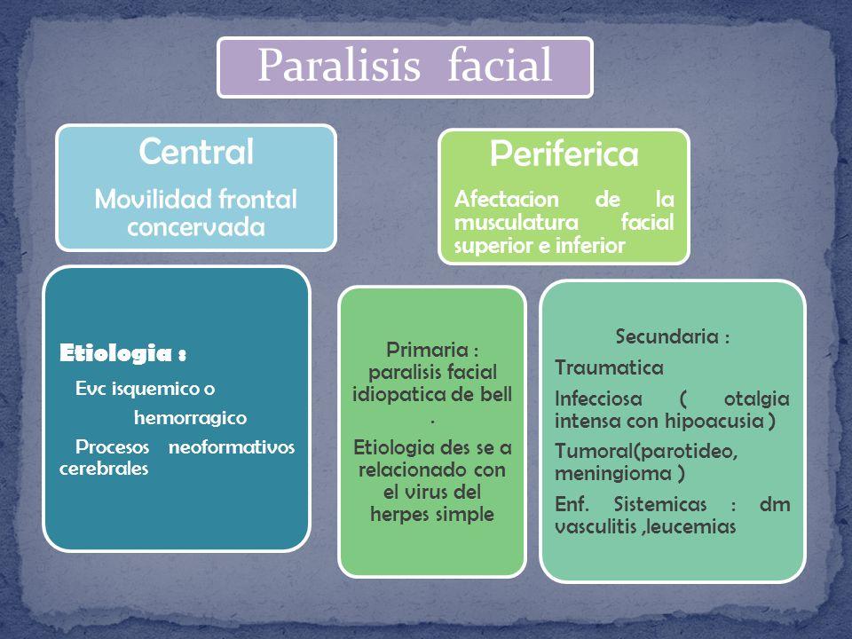 Paralisis facial Central Periferica Movilidad frontal concervada