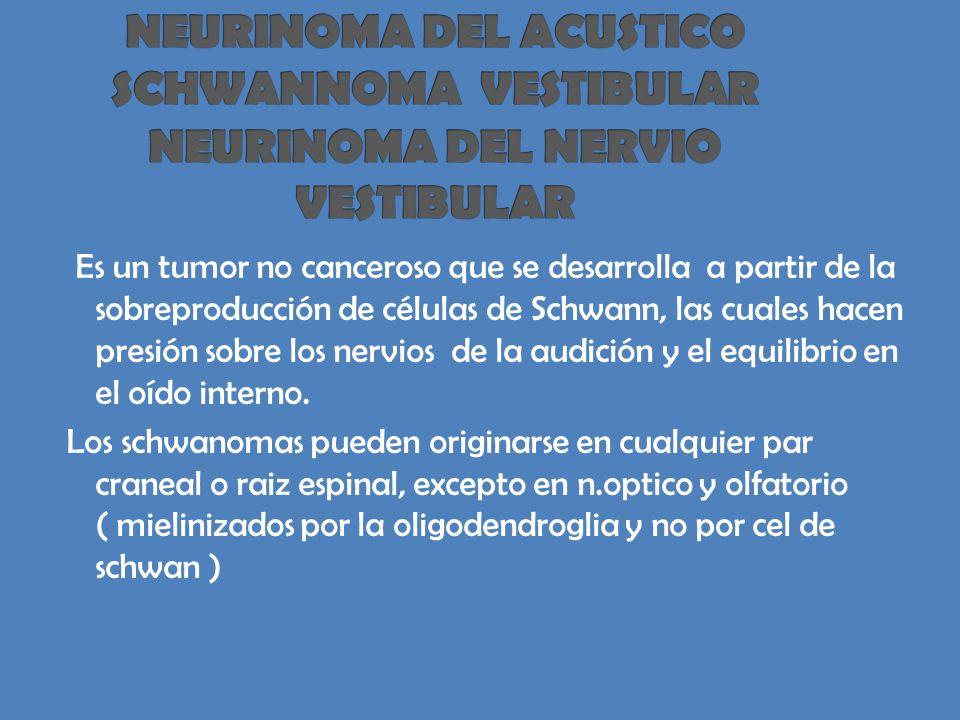 NEURINOMA DEL ACUSTICO SCHWANNOMA VESTIBULAR NEURINOMA DEL NERVIO VESTIBULAR
