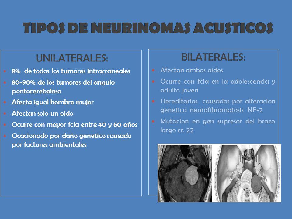TIPOS DE NEURINOMAS ACUSTICOS